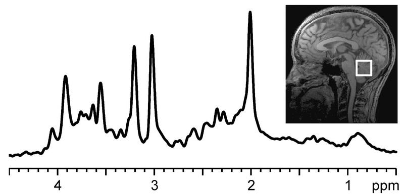 In vivo magnetic resonance spectroscopy