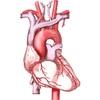 Pediatric Pacemaker