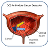 OCE For Bladder Cancer Detection