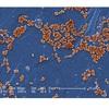 Antibiotic Resistant Staphylococcus aureus Bacteria