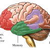 Diagnosis of Alzheimer's Disease
