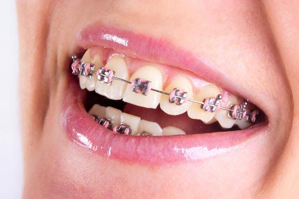 The Key to a Healthy Smile with Braces