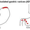 Gastric Varices
