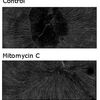 Neurons of mouse corneas 28 days after superficial trauma. Treated with mitomycin c or control solution.