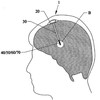 Head mounted brain stimulation medical device