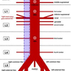 Aortic Branches
