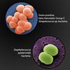Cellulitis Bacteria