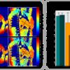 MRI Quantification