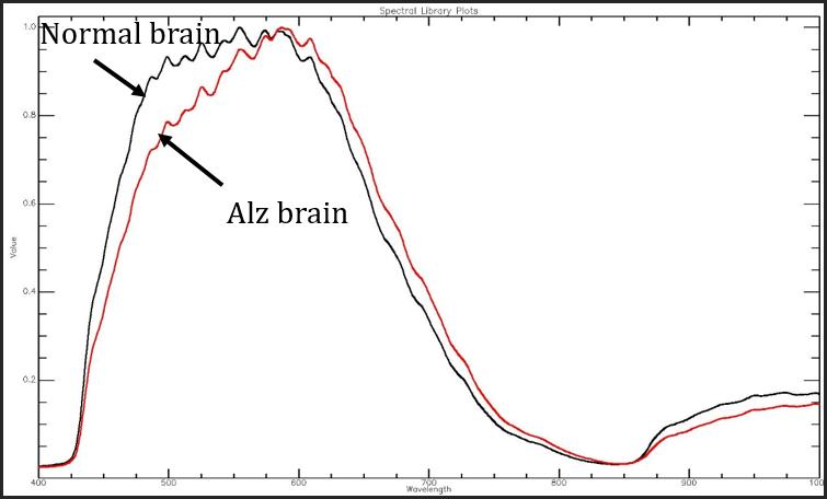 Noninvasive Early Alzheimer's Detection Imaging System