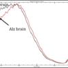 Alzheimer Brain Tissue