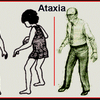 Ataxic movement disorders
