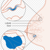 DCIS and invasive breast cancer