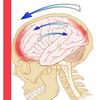 Widespread brain injur