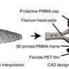 Digitally generated See-Shells skull prosthetics