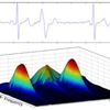 A raw ECG signal can be decomposed by a spectral transform to reveal frequency information while retaining data on phase and amplitude