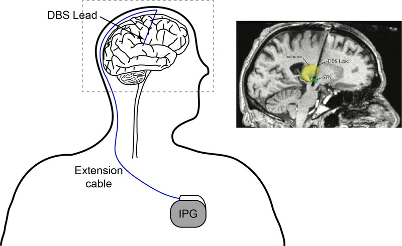 Particle Swarm Optimization for Programming Neuromodulation